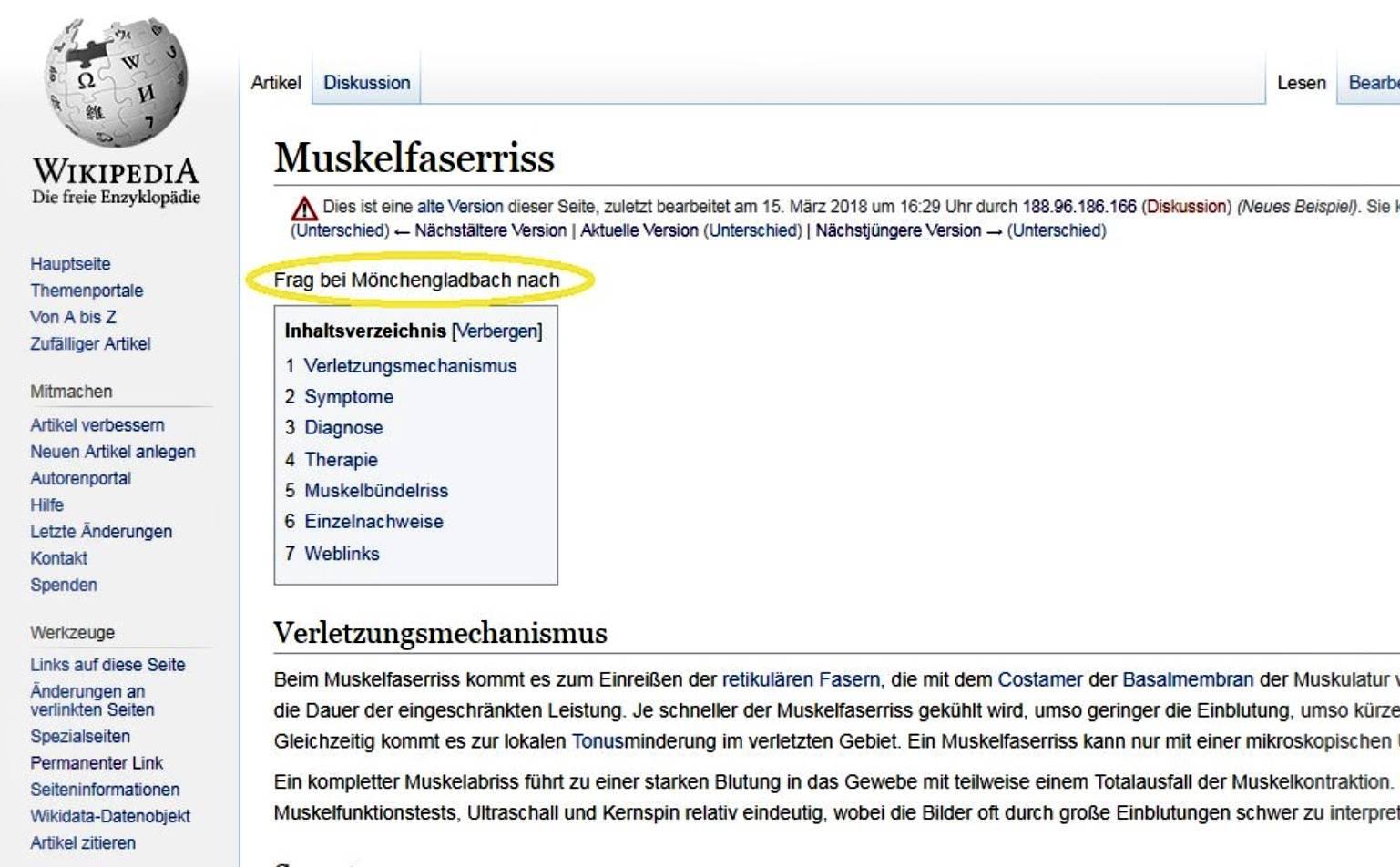 Borussia Monchengladbach Wikipedia Eintrag Muskelfaserriss Frag Bei Monchengladbach Nach